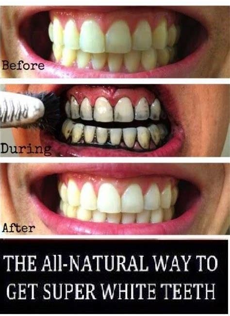 whiten  teeth  activated charcoal teeth
