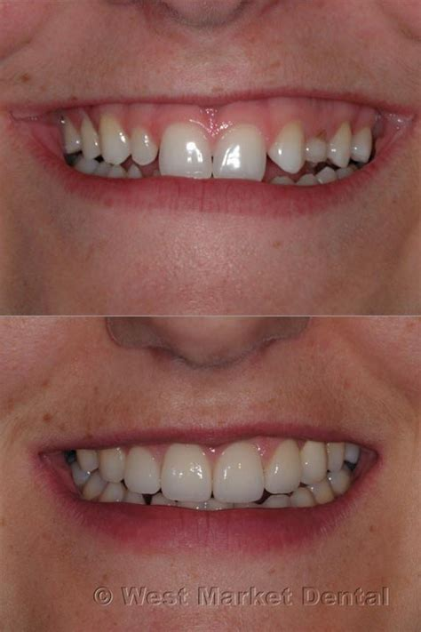 laser gum lift calgary dentist west signal hill sw