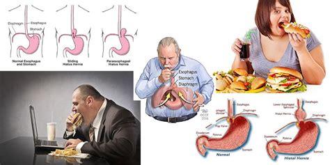 alimenti per ernia iatale ernia iatale dieta seguire e quali sono gli alimenti