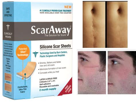 scar removal cream for african americans imported quality scar removal sheets in pakistan