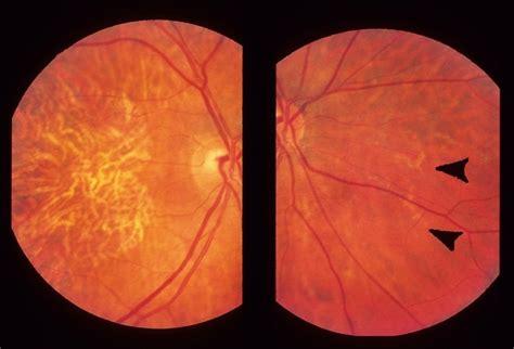 pattern dystrophy images pattern dystrophy retina image bank