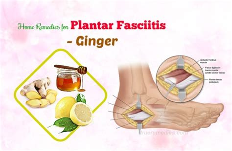 26 home remedies for plantar fasciitis