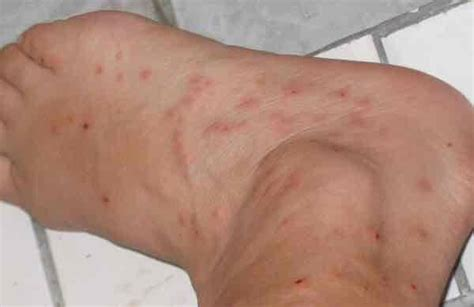 healing bed bug bites gnat bites or bed bugs things you didn t know
