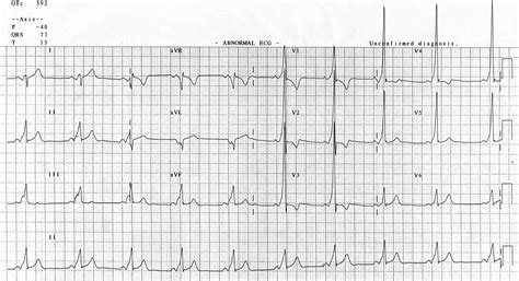 wolff parkinson white pattern ecg wolff parkinson white syndrome life in the fast lane ecg