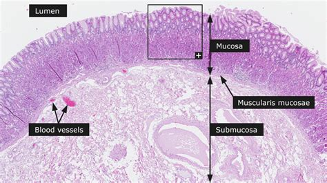 fundus of stomach stomach histology fundus www pixshark images
