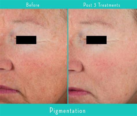 tattoo removal milwaukee laser skin rejuvenation evolvmd laser removal