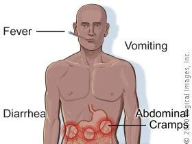 stomach muscle spasms after c section salmonellosis spring 13 section 02 ggcwiki
