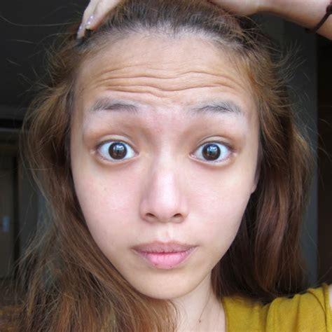 hide forehead at beach qiuqiu botox is love