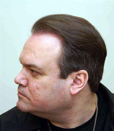 antony cotton hair transplant antony cotton hair coronation street stars have hair