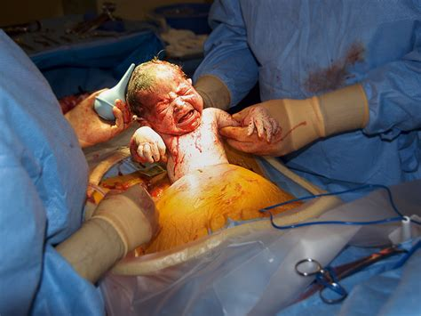 video of c section birth reducing the c section rate