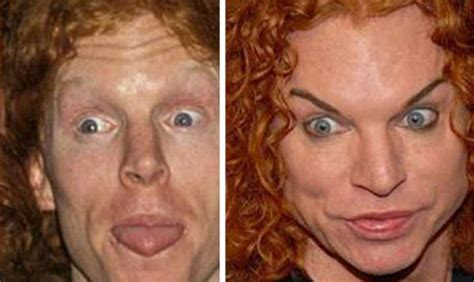 Plastic Surgery Scary Second City Style Fashion by Before After Comedian Carrot Top Not An Especially