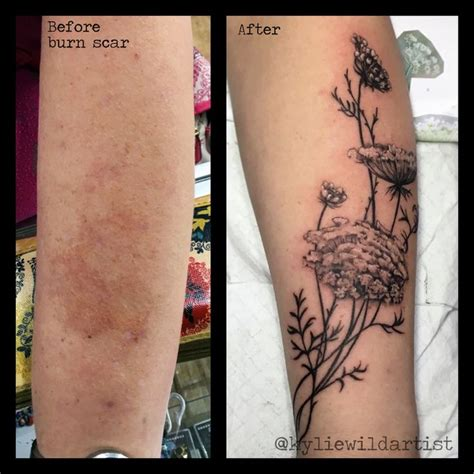 sunburn tattoo burn scar cover up s lace flowers black