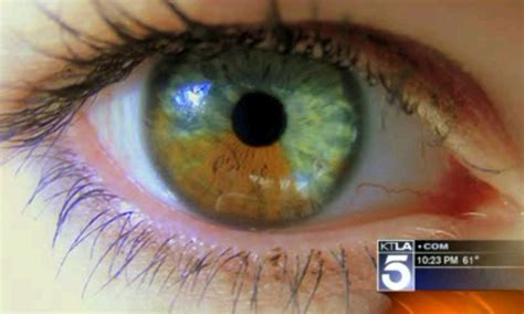 california doctor gregg home  turn brown eyes blue