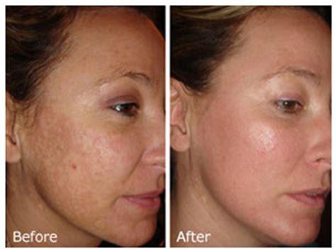 Collagen Bb Plus chemical peels la vida medspa