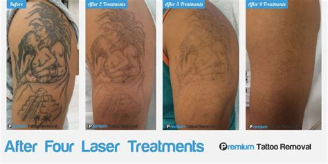 laser tattoo removal results after first treatment before and after photos laser removal premium