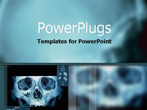 High Tech X Ray Image On Computer Powerpoint Template Background Of Xray Picture Sceleton Med019 Radiology Powerpoint Template