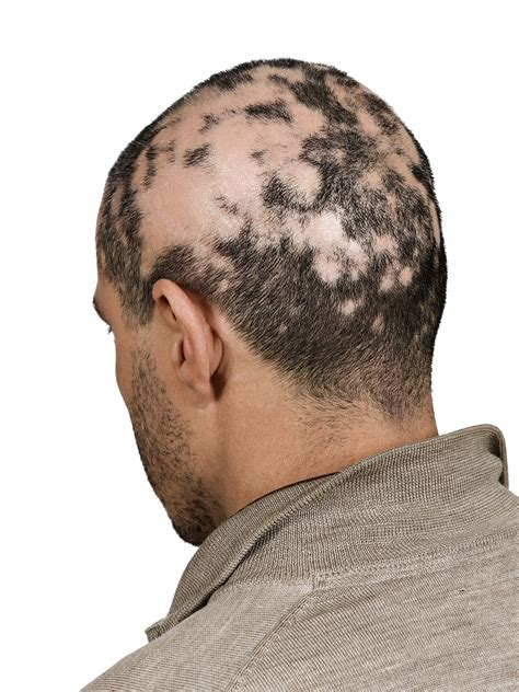 what cause prople bald in crown men s hair loss what you need to know