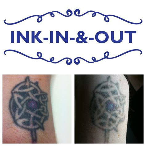 bristol tattoo removal 17 best images about ink in out q switched nd yag laser
