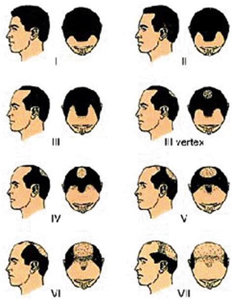 Male Pattern Baldness Quizlet | 5 categories of hair loss dr sean behnam 310 829 4291