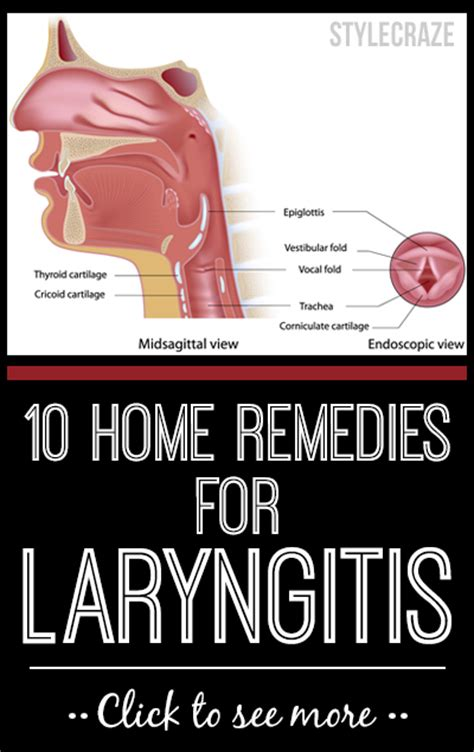 what are some common treatments for laryngitis