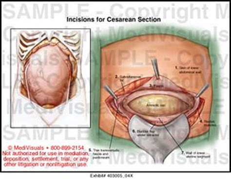 in c section where is the cut incisions for cesarean section medical exhibit medivisuals