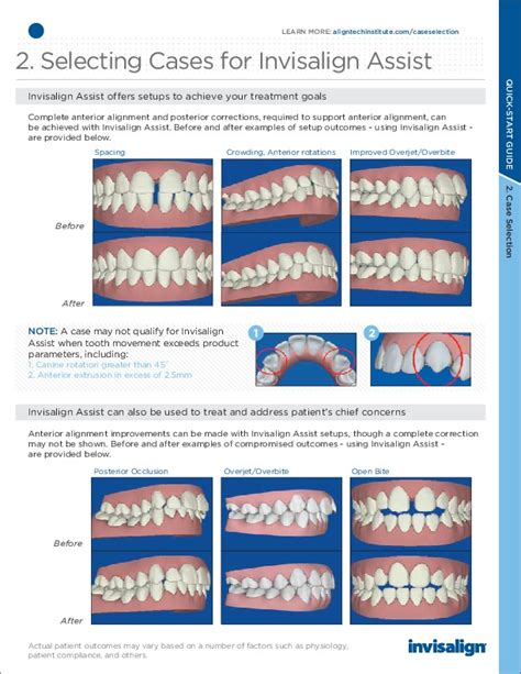 New Invisalign Quick Start Guide For Cosmetic Dental Braces Invisalign Photo Template