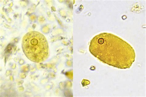 fig 4 polymorphonuclear leukocytes left mount