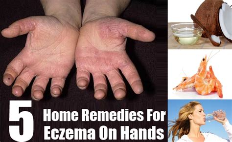 Home Remedy For Eczema by Top 10 Best Rc Cars 2016