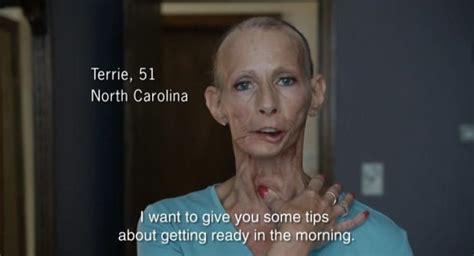skin on face 53yrs old woman photos n c woman who was face behind anti smoking ads dies of