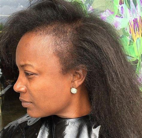 sew in weave on person with alopecia why you shouldn t mess around with false hair 5 pics