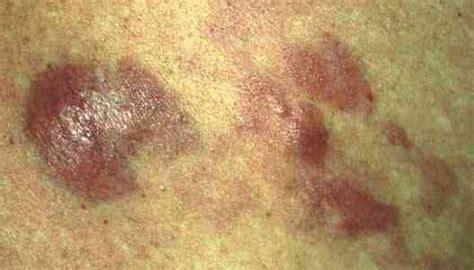 B Skin skin cancer lymphoma skin cancer