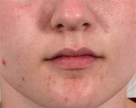 What Is Acne by Image Gallery Normal Acne