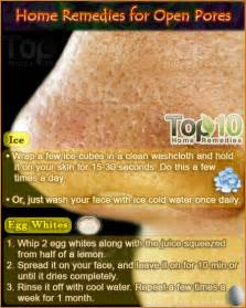 top 10 home remedies home remedies for open pores top 10 home remedies