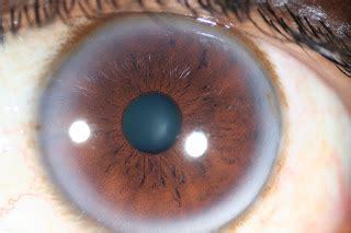 modern multidimensional iridology cholesterol ring