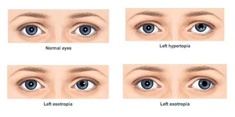 squinting one eye squint 187 spina bifida association