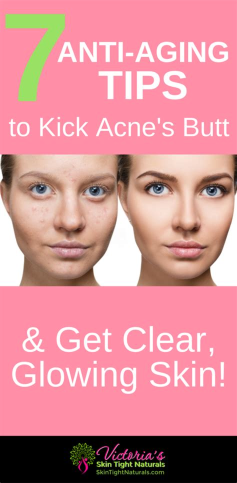 7 Reasons Youre Still Getting Acne by Un Pimple Your How To Acne Problems Fast