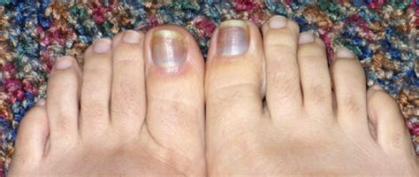 bruised nail bed black spot on toenail cuticle pictures nail ftempo