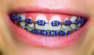 braces color orthodontic alloys what are braces made of