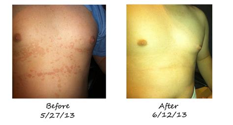 before picosure treatments and 2 weeks after my what is tinea versicolor