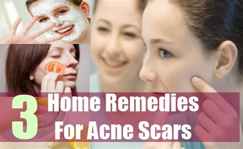 how to treat acne scars naturally home remedies for acne