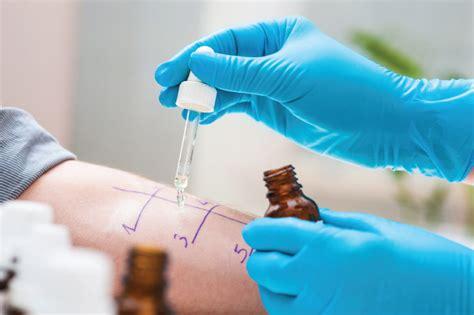 test per allergie test allergie test rast test e patch test