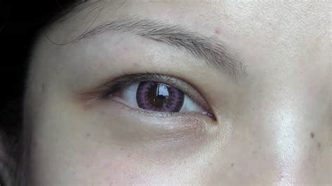Reasons For Eye Circles And Puffiness by Reduce Puffiness And Eye Circles