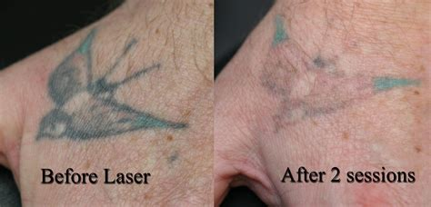 laser hair removal affect tattoos removal best hair style