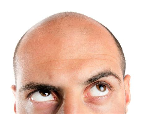 Home Design Software Free For Windows 8 top major causes of hair loss in men