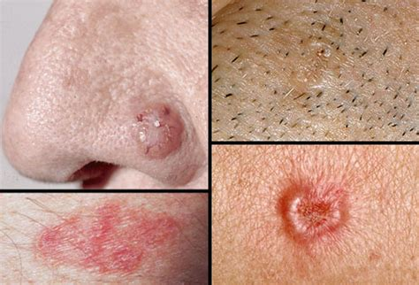 scaley lesion ulcer face keep those lips covered to avoid skin cancer ballard