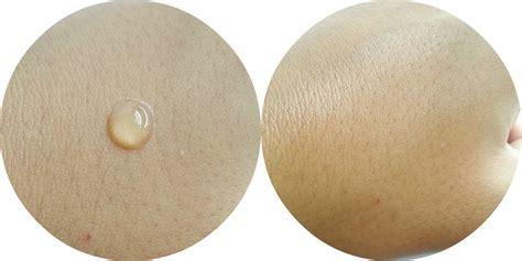 Oxy Anti Pimple Gel Whitening oxy anti pimple gel whitening review fishmeatdie