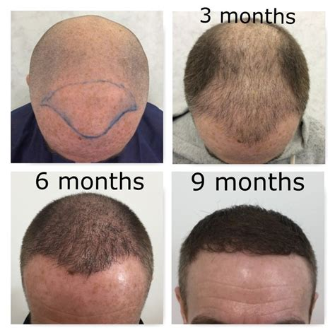 hair transplant month by month pictures ksl hair private hair loss clinic in cowcaddens