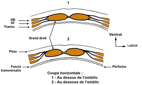 La Ligne Grangé by Paroi Abd Texte