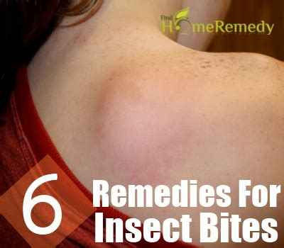 6 home remedies for insect bites and stings