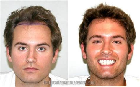 hair transplant before and after before and after hair transplant surgery photographs using